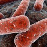 La tuberculosis sigue siendo un problema asociado a la pobreza