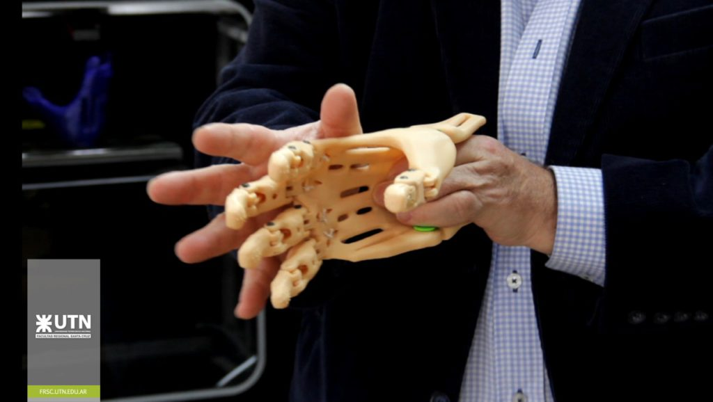 La primeras prótesis 3D de la Regional Santa Cruz ya son una realidad